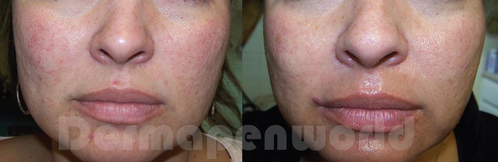 DERMAPEN - Zdjęcia przed i po - ujednolicenie kolorytu skóry 02