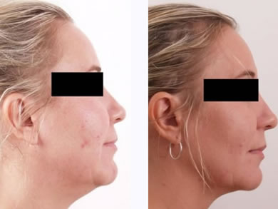 exilis_chin_before_after-thmbnl