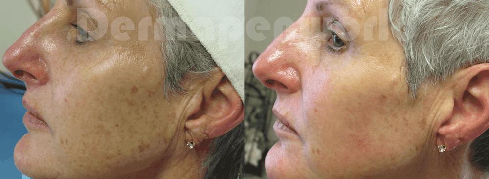 DERMAPEN - Zdjęcia przed i po - ujednolicenie kolorytu skóry 01