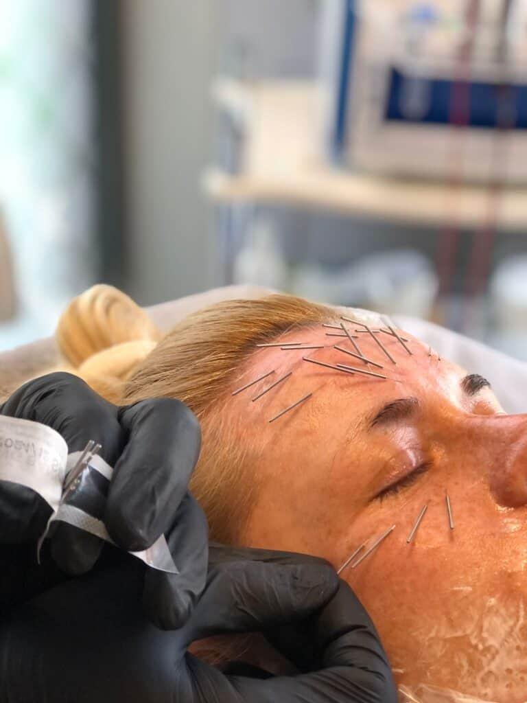 Needle shaping